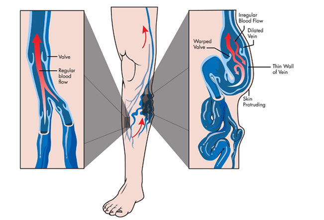 Vein Disorders Treatment