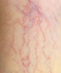Spider Veins Disorder